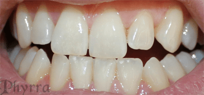 My teeth before the procedure