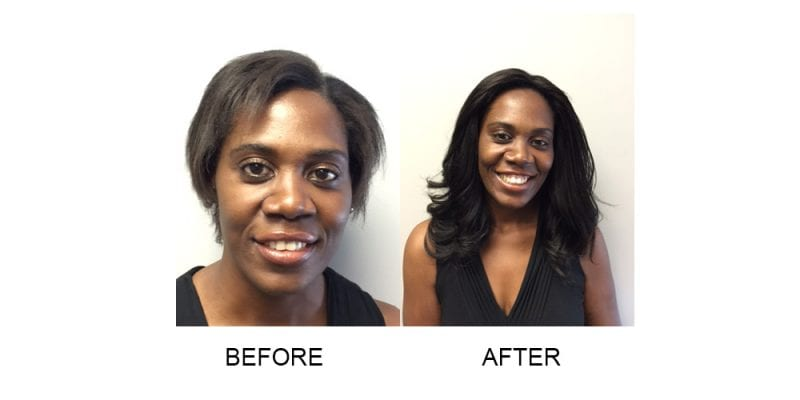 Before and After with Invisablend Hair Treatment