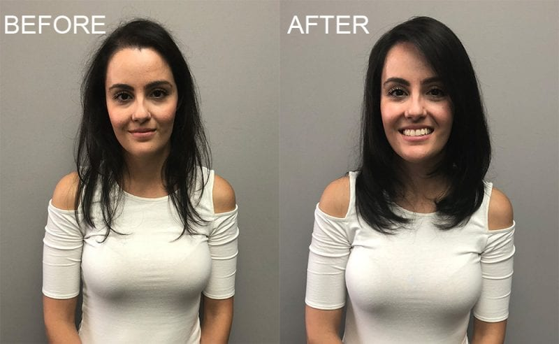 Before and After with Invisablend