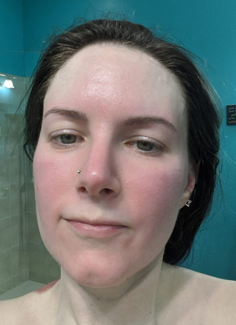 What Rosacea Looks Like